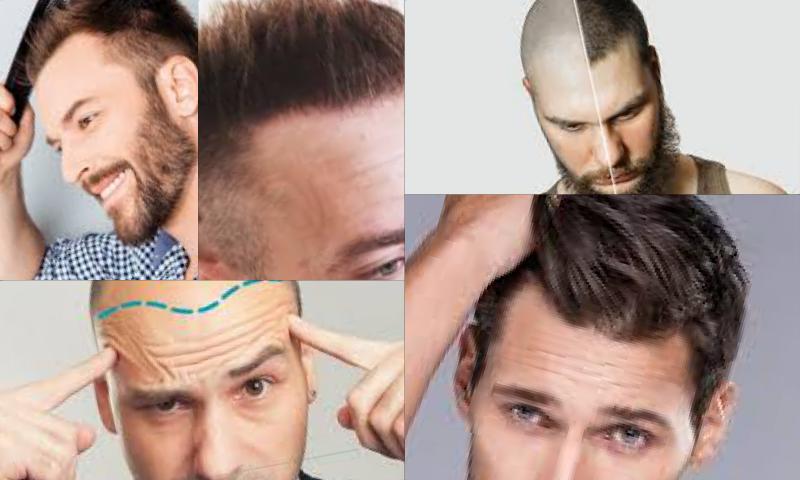 Fue Hair Transplant Fue Saç Ekimi